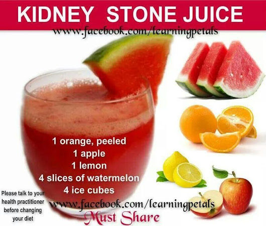 Kidney Stone webinar this Sunday