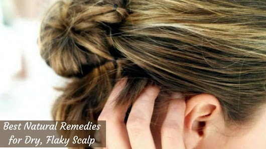 Home Remedies to get rid of Dry Flaky Scalp