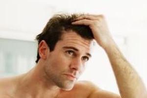 Esiste un legame tra prurito e caduta dei capelli? Caduta dei capelli
