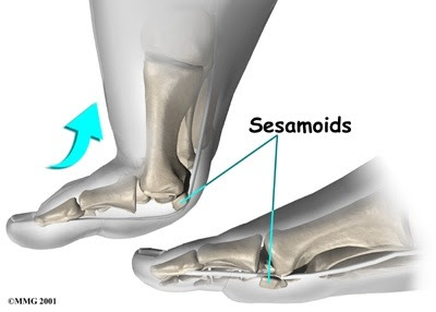 Running with sesamoiditis: How I resolved a 10 year old injury by ditching my traditional running shoes.
