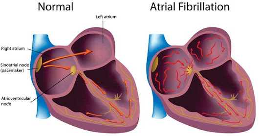 Atrial fibrillation (AFib): Types, Symptoms, Causes and Treatment