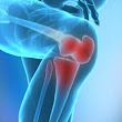 Natural Relief of Knee Joint Pain with Nopalea Cactus Juice
