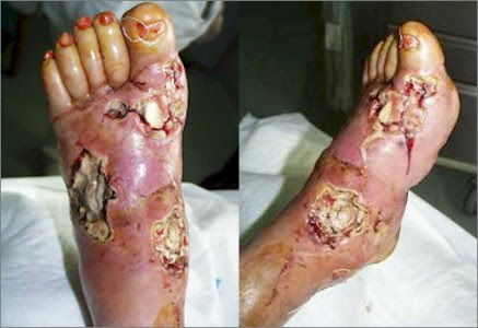piede diabetico 2