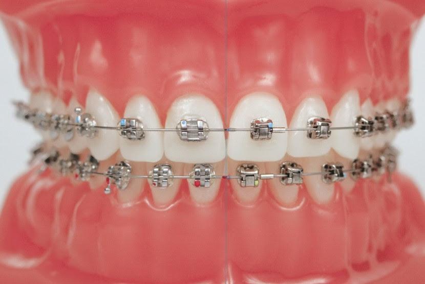 Dokter Jangan Mudah Tertipu Tawaran Kawat Gigi Murah