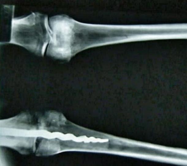 Rayos X que muestran la barra metálica de 22 centímetros en la rodilla de Usermontu.