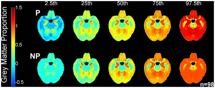 Digital Atlas of Aging Brain Could Aid Diagnosis of Alzheimer's Disease
