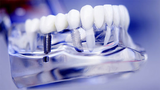 Implants and Imperative Dental Care - Dentistry For You