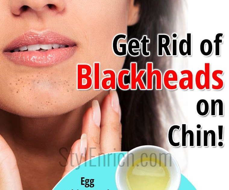 how to get rid of blackheads on nose and chin