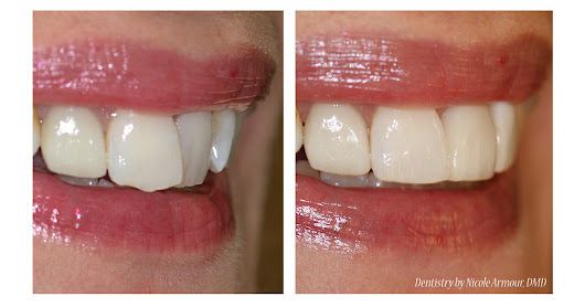 A Sneak Peak of our Newest Cosmetic Bonding System - Armour Dentistry
