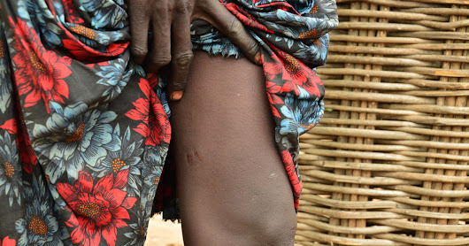 South Sudan Halts Spread of Crippling Guinea Worms