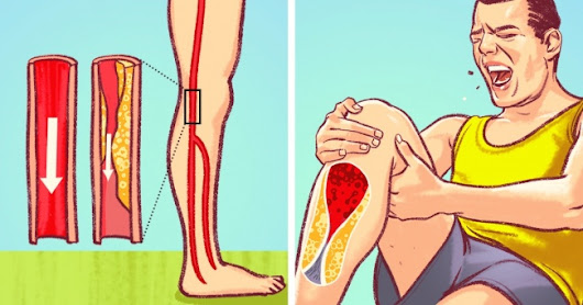 8 Dangerous Signs Of Blocked Arteries That We All Should Never Ignore