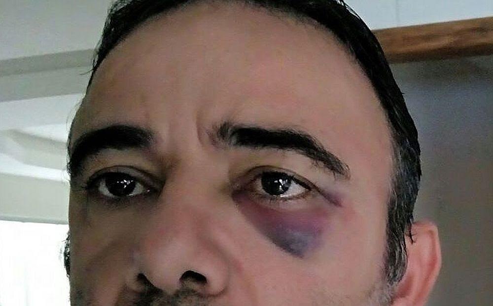 Agente de trânsito é agredido por condutor enquanto aplicava multa em Ilhéus