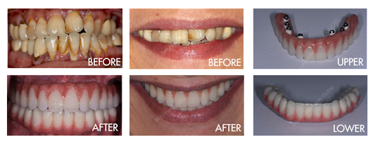 Restoring Glendale area smiles with dental implants