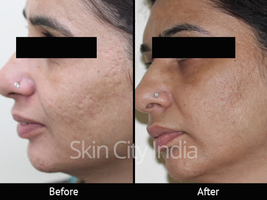 Skin Specialist in Pune - Skin City India | Health Care