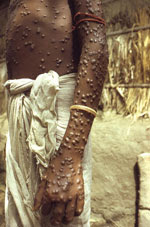 Thumbnail of Patient with smallpox. Photograph by Jean Roy, provided by the Public Health Image Library, Centers for Disease Control and Prevention, Atlanta, GA, USA.