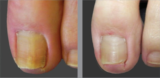 Easy Way to Treat Toe Nail Fungus