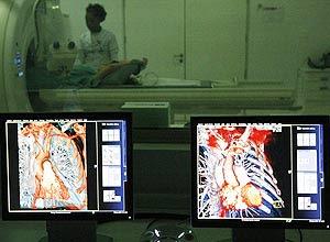 Monitores mostram a tomografia feita com o novo aparelho instalado no Hospital Sírio-Libanês