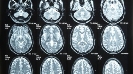 Traumatic brain injury warning signs parents should look for |