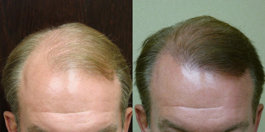 Hair Loss Answers to Frequently Asked Questions