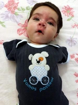 Má-formação foi descoberta aos três meses de gestação bebe heitor (Foto: Natália de Oliveira / G1)