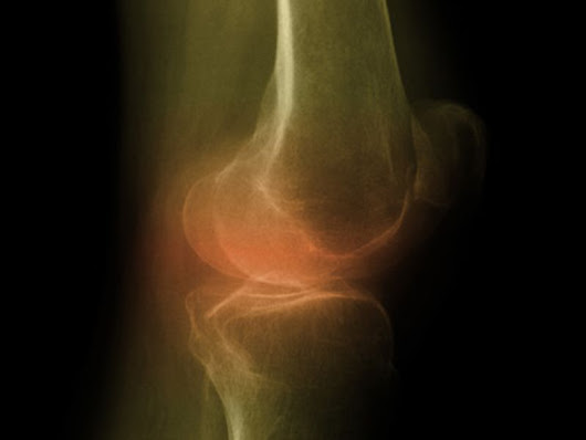 Reduce Weight, Reduce the Arthritic Knee Pain
