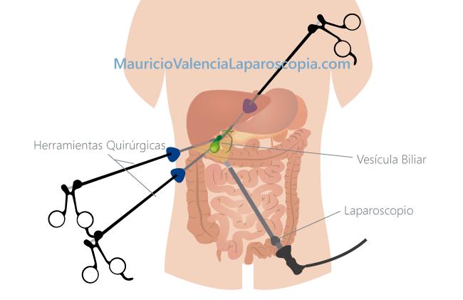 operacion vesicula dieta postoperatoria