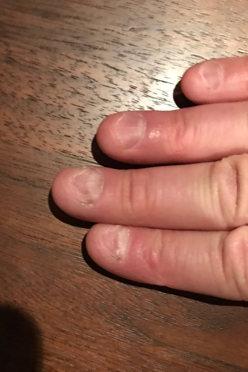 Cassandra M\'s Place: NeverBite stops nail biting while helping nails