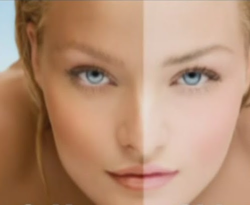 Quick And Easy Skin Whitening Tips > Amaranthine Skin Care