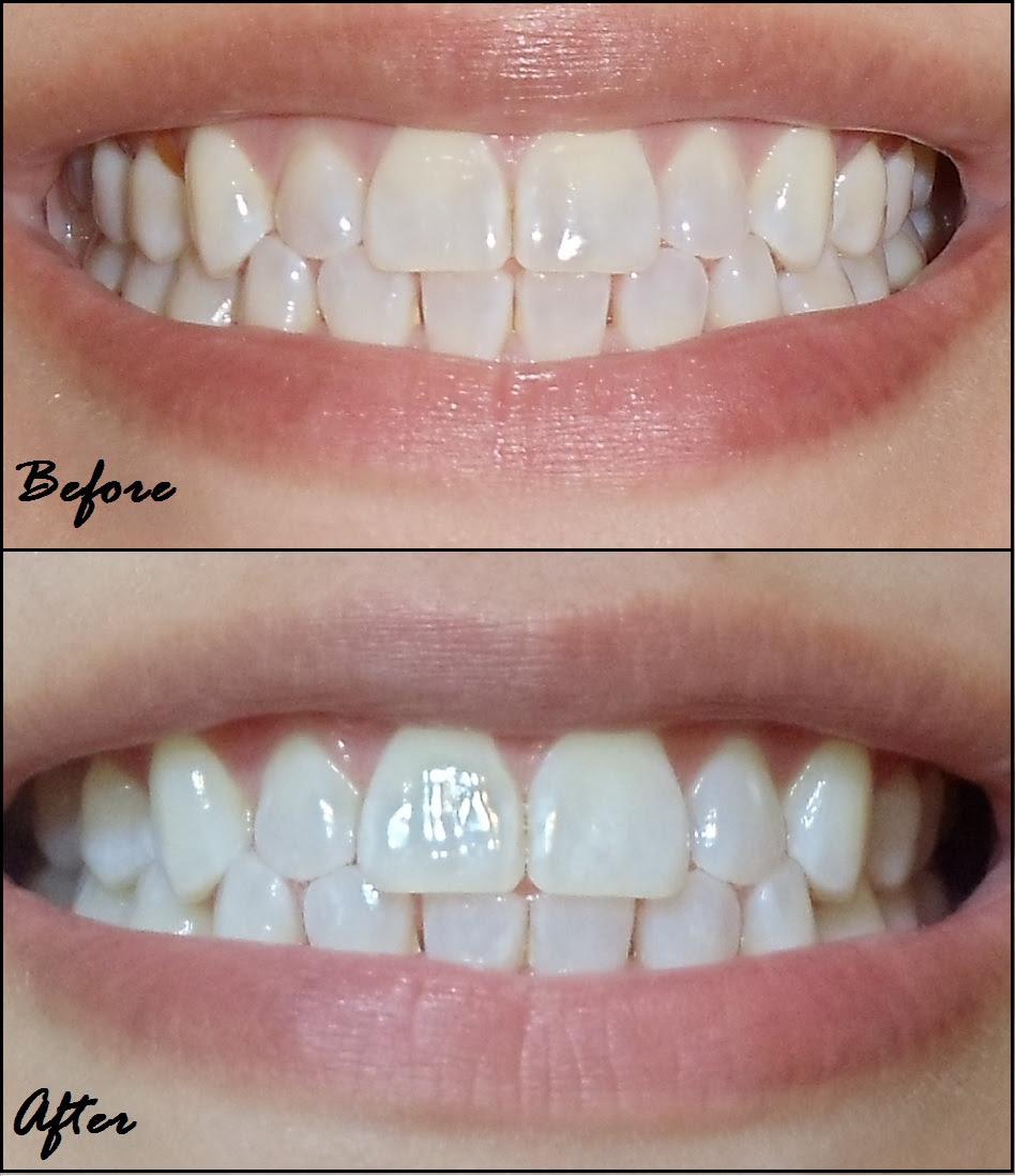 Does Teeth Whitening Strips Work Teethwalls