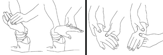 Illustration of an exercise for the wrist