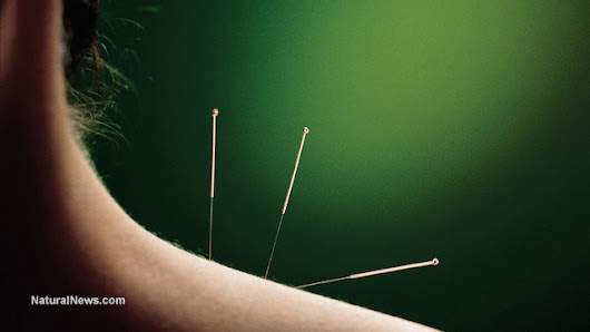 Latest study reinforces link between acupuncture and relief from hot flashes