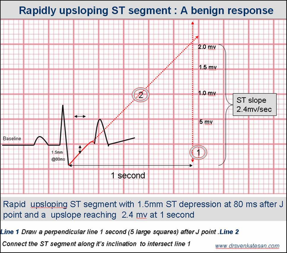 upsloping st segment tmt st slope ecg | Dr.S.Venkatesan MD