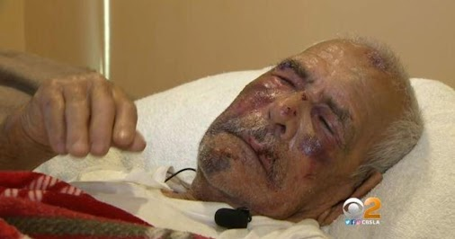Woman charged with attempted murder in beating of man, 92, with brick