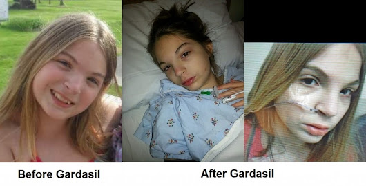 Iowa Girl Faces Death: Life Destroyed by Gardasil Vaccine