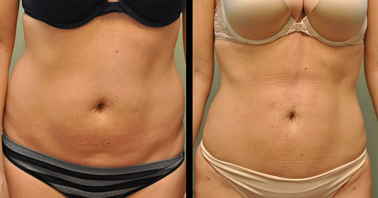 Body Plastic Surgery Procedures - Before & After Photos | Dr. Brought: SPRSI