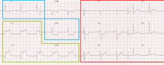 ST What?! Recognising Myocardial Ischaemic ECG Changes!