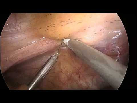 EndoLift for Retraction of the Rectum in Single Port Decrease Anterior Resection