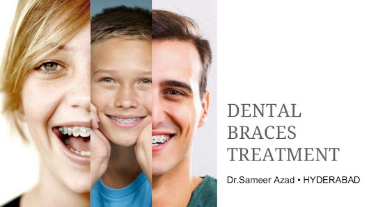 Dental Clip Treatment in Hyderabad | Types of Orthodontic Braces