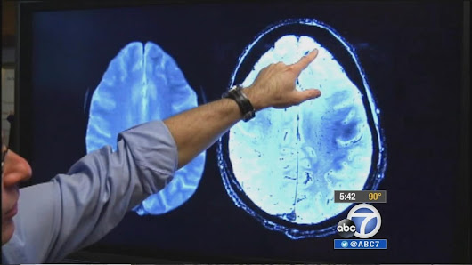 UCLA study: Non-drug treatment may reverse memory loss in Alzheimer's patients