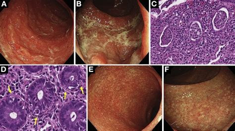 Nivolumab Induced Colitis Treated by Infliximab   Clinical
