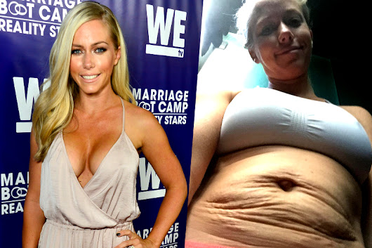 Kendra Wilkinson Shows Real Post Baby Body with Stretch Marks