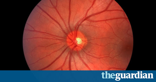 Google DeepMind pairs with NHS to use machine learning to fight blindness | Technology | The Guardian