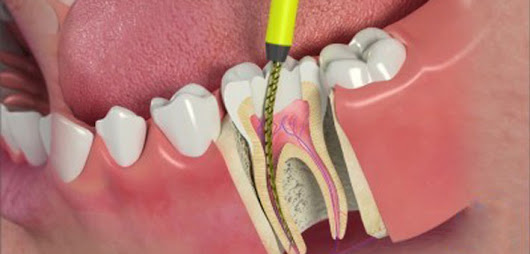 Effectiveness of Root Canal Therapy - ABC123 Dental