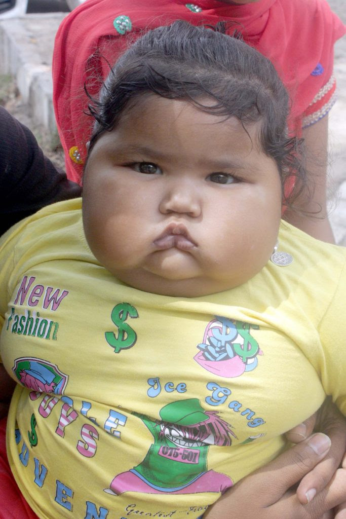 Fattest Baby In The World : fattest, world, Fattest, Newborn, World