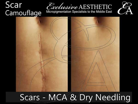 Scar Removal using MCA Dry Needling - Exclusive Aesthetic