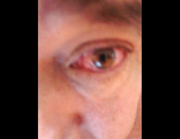 Conjutivite em olho de paciente diagnosticado com zika, dengue e chikungunya (Foto: J. Infect. Public Health/divulgação)