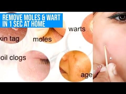 I Remove My Moles & Wart in 1 Sec  at home   read description