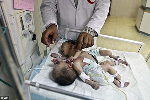 cặp song sinh, dính liền tim, phẫu thuật, cứu sống