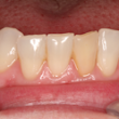 Teeth Whitening in Manchester - Carisbrook Dental