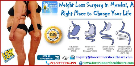 Weight Loss Surgery in Mumbai, A Right Place to Change Your Life by Anan A.